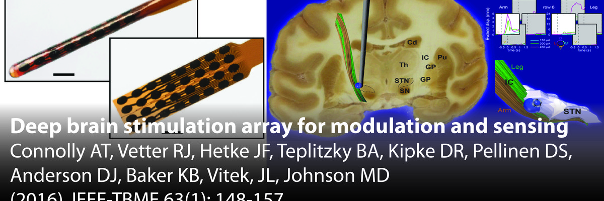 Deep Brain Stimulation array for modulation and sensing